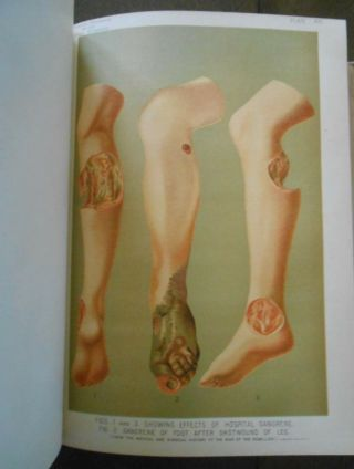 Rare Antique Color Illustrated Medical Book Over 100 Years Gangrene Diseases